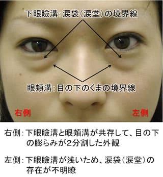 膨らみ 目の下 の 目の下のふくらみの原因はたるみ!すぐにできる簡単なトレーニングや解消法を紹介