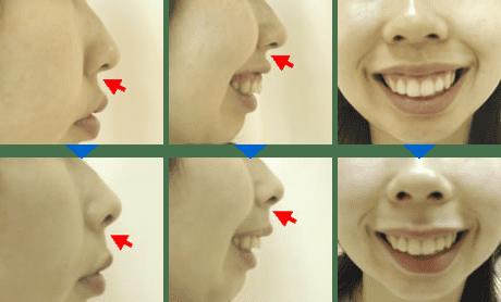 基部 プロテーゼ 鼻翼